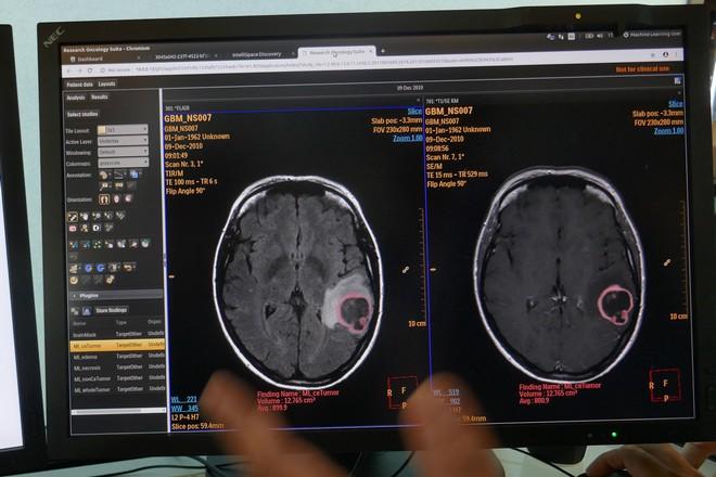 Industriels de la santé: la lutte pour l'accès aux données des hôpitaux français