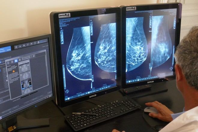 Le centre de radiologie CSE fiabilise la détection de cancer du sein grâce à l'intelligence artificielle