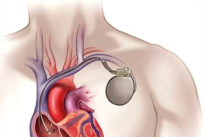 Les hôpitaux de Paris télésurveillent 5000 patients munis de stimulateurs cardiaques
